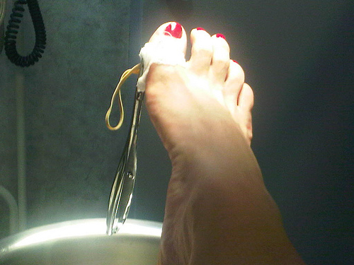 Ingrown Toenail Surgery Aftercare